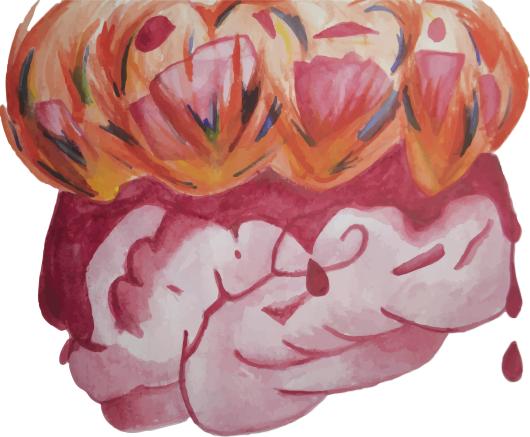 cerebro-desorden